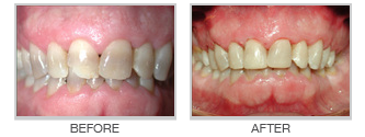 "Direct Composite Veneers or ""Bonding"""