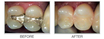 Silver Amalgam Replacement